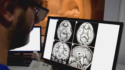 Hicieron la primera resonancia cerebral a un niño por nacer