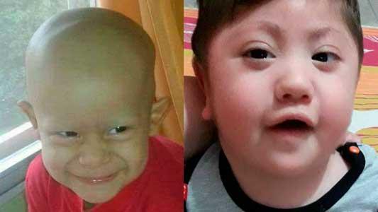 Enzo y Noah: dos pequeños que necesitan mucha ayuda