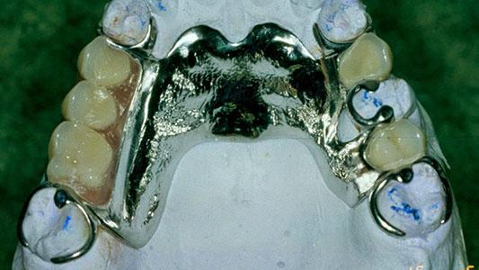 Buscan una dentadura perdida de un joven con discapacidad motriz